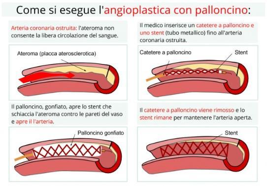 1b. Cenni sull'Angioplastica3