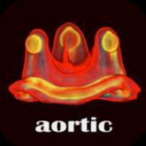 Valve-in-Valve-Aortic