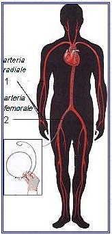 1b. Cenni sull'Angioplastica1