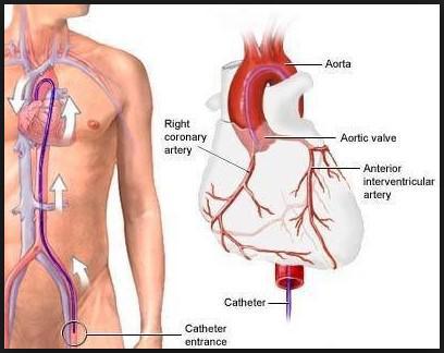 1b. Cenni sull'Angioplastica2