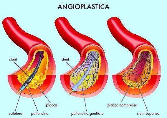 1b. Cenni sull'Angioplastica4