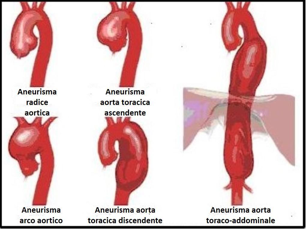 3. ANEURISMA AORTA1