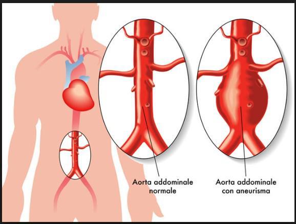 3. ANEURISMA AORTA2