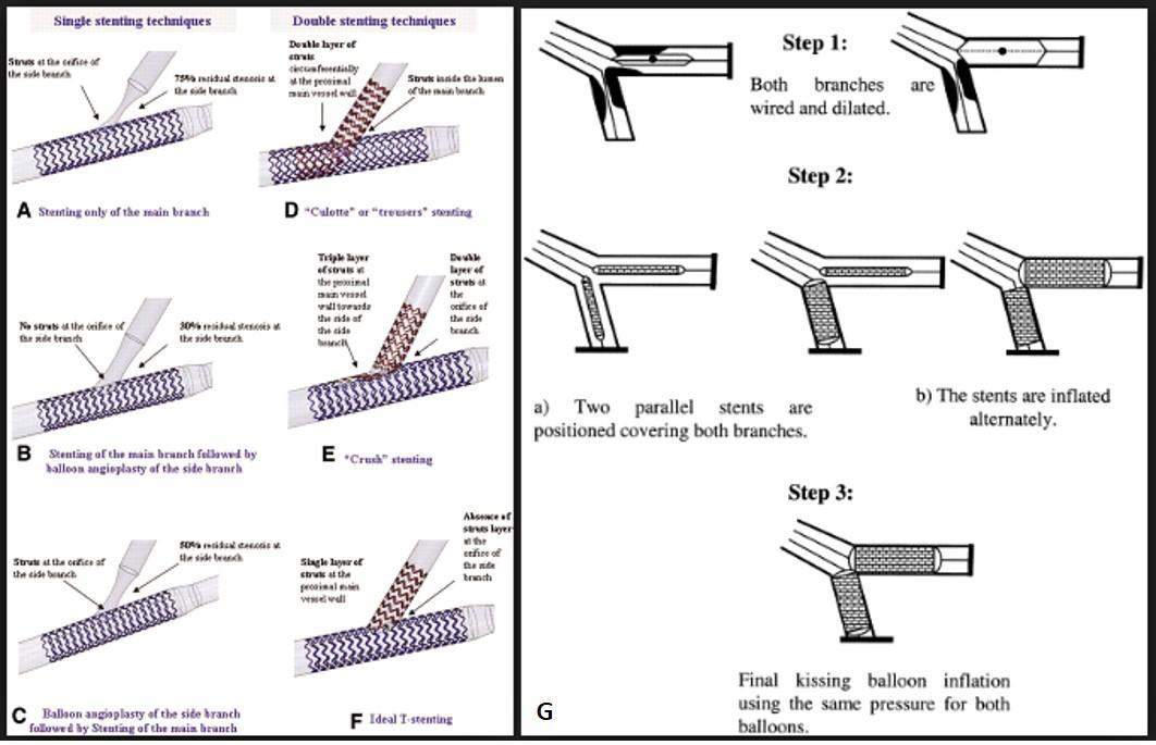 3a. Tipi di lesioni1