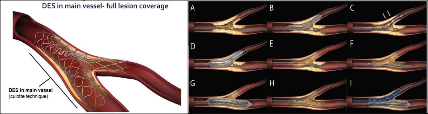 3a. Tipi di lesioni2