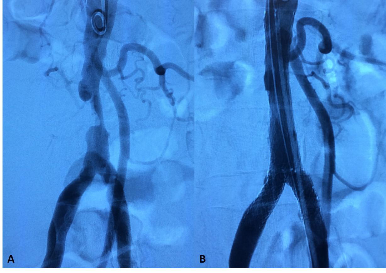 4. STENOSI AORTA ADDOMINALE1