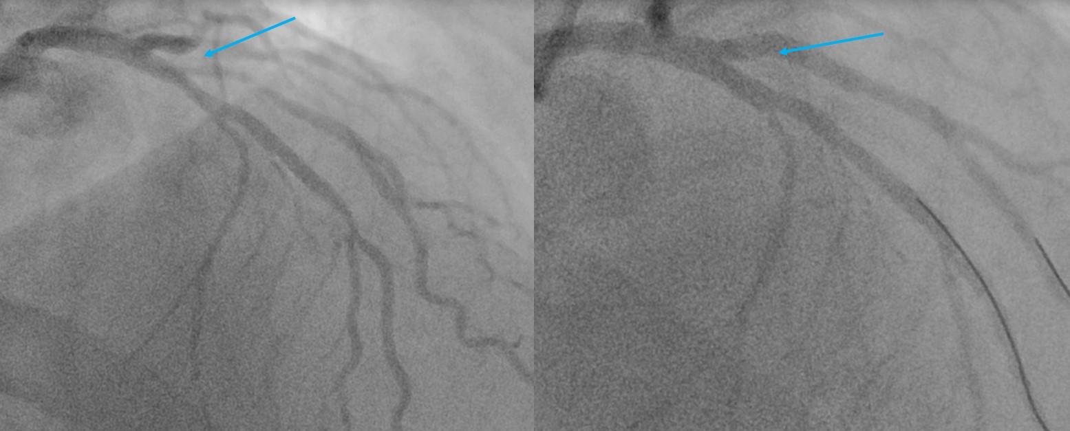 Biforcazione 2 stent IVA minicrush