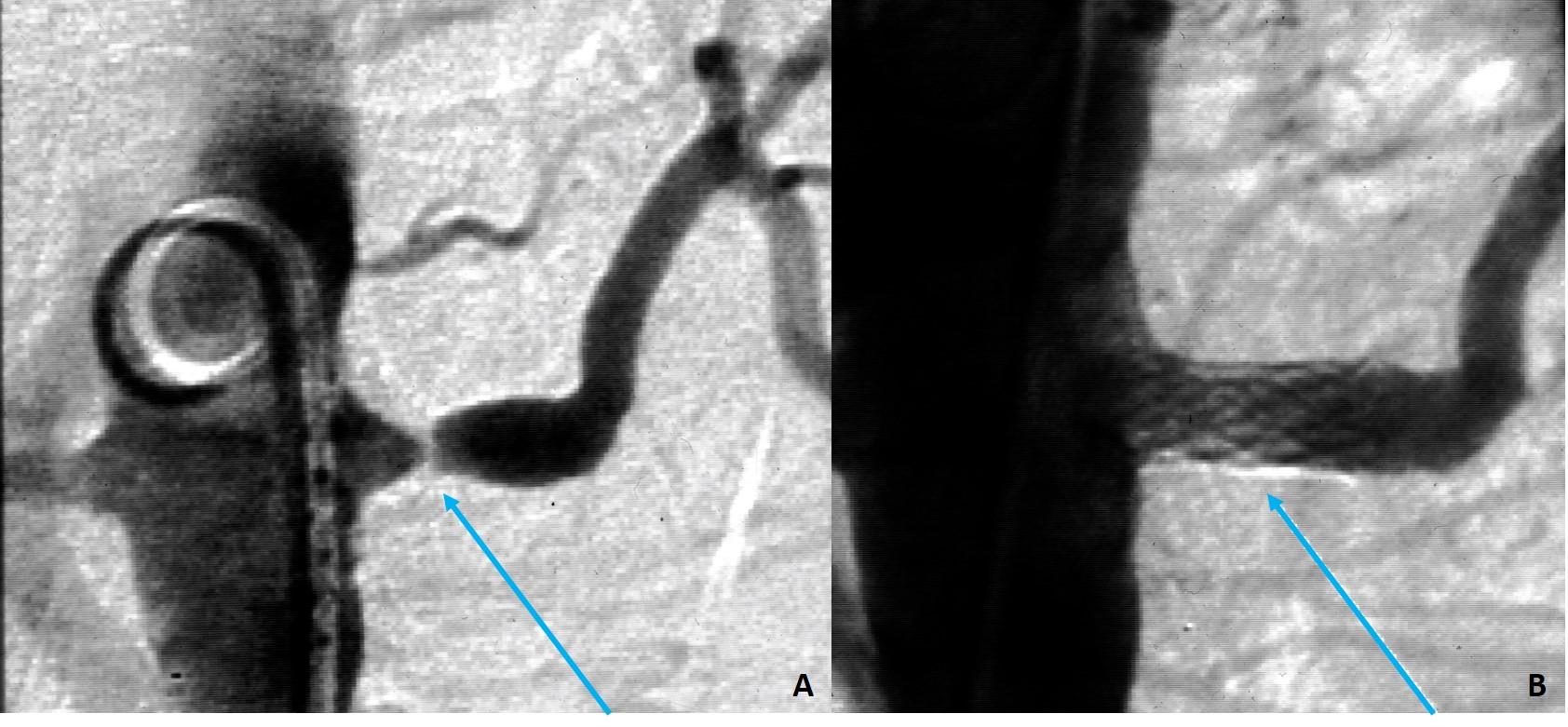 Angioplastica delle arterie renali